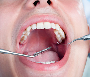 Downtown Dental Centre Family Practice Dentist in ON Canada discusses possible non-surgical treatments for gum disease