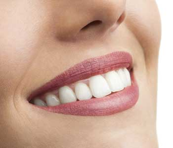 Smile will Remain Natural-looking, Downtown Dental Centre Family Practice