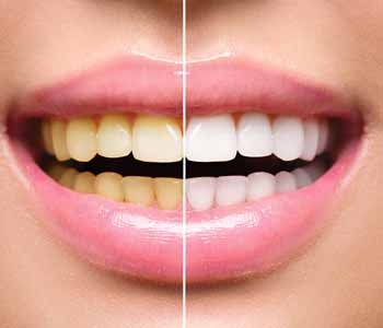 Dental Whitening Centre Near Me London