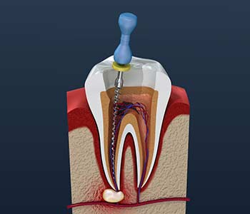 Downtown Dental Centre Family Practice London dentist explains how root canals are an excellent way to help save the natural tooth