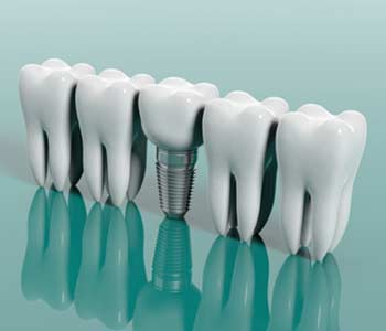 Lifelong Solutions for Missing Teeth in London, ON area