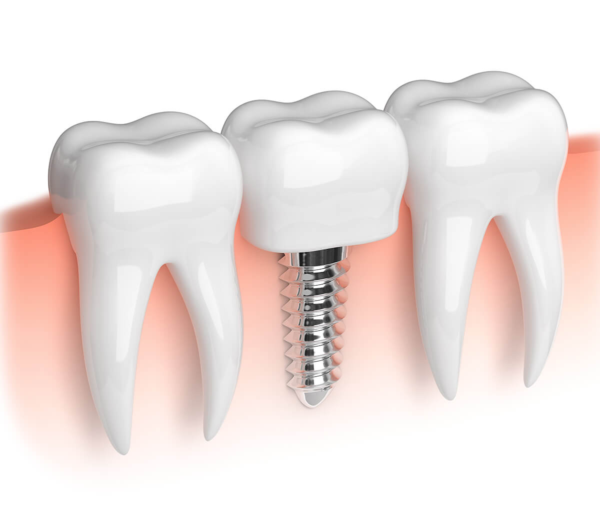 Smile Confidently, Eat Comfortably Again with Quality Tooth Implant Service in London, ON Area
