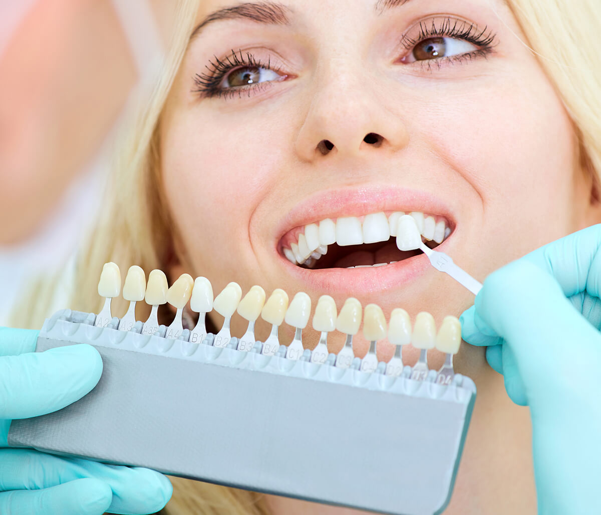 In London, ON Area, Dentist Explains About Porcelain Veneers and What Makes Someone a Suitable Candidate