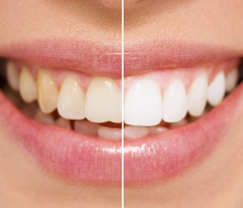 after and before porcelai veneers
