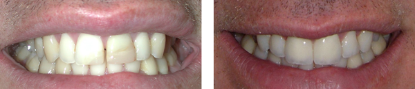 before and after patient's teeth with two anterior crowns treatment case 2
