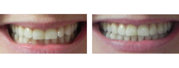 before and after orthodontics treatment case 1