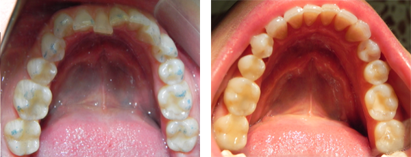 before and after orthodontics treatment case 2