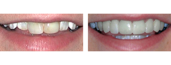 before and after teeth whiting treatment case 1