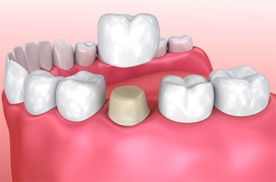 Dental crowns procedure, before and after images