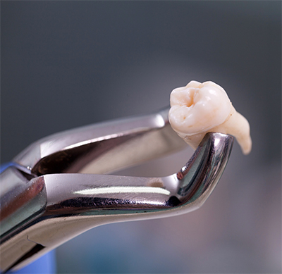 Dental extractions procedure, before and after images