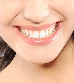 A girl showing her healthy gums