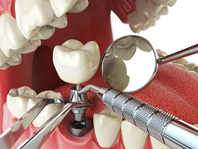 Dental implant london on, implant restoration procedure image
