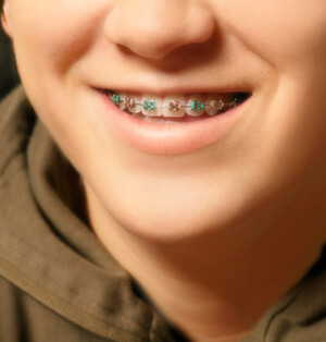 A boy having orthodontics treatment