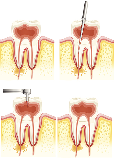 Root canal therapy, before and after images