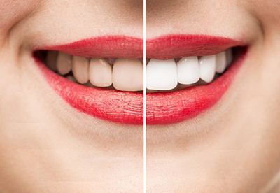Teeth whitening London ON, before and after image